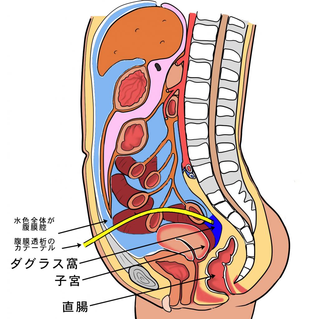 腹膜透析とは?お腹のどこにカテ...